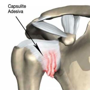 capsulite-adesiva-spalla