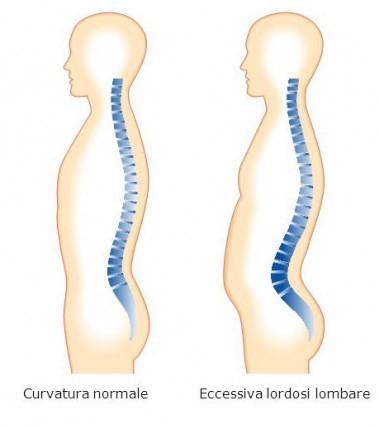 iperlodosi-lombare