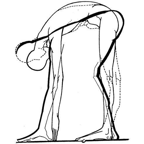 mezieres